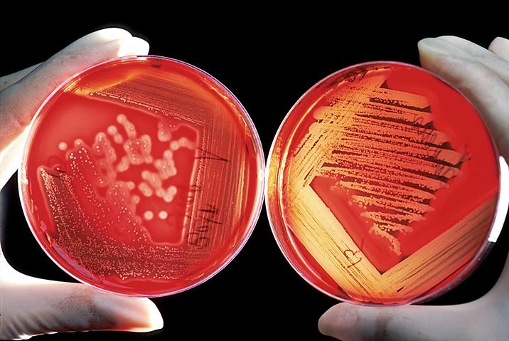 Bacterial cultures on agar
